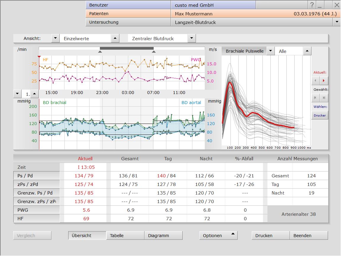 Langzeit-Blutdruck in der custo diagnostic